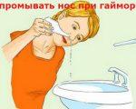 Промывание носа при гайморите (верхнечелюстном синусите)