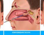Прокол при гайморите: операция и лечение гайморита лазером