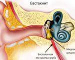 Евстахиит: причины, симптомы, лечение
