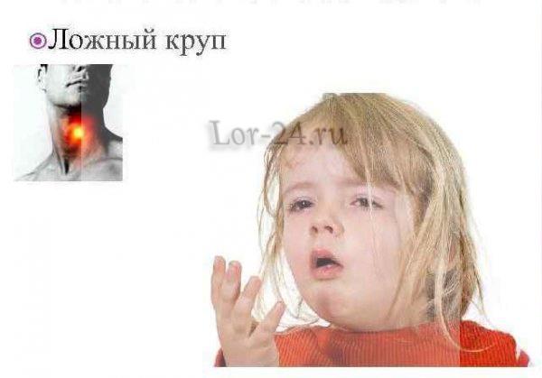 lozhnyy krup
