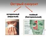 Вирусный синусит
