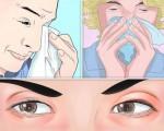 Аллергический синусит