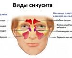 Классификация синуситов: виды, формы и типы синуситов