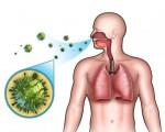 Острый риносинусит