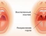 Гнойная ангина у детей: как выявить и чем лечить
