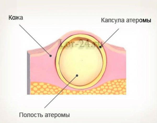 Как проявляется атерома за ухом и в ушной раковине?