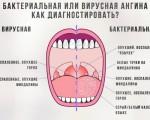 Бактериальная ангина, как ее отличить от вирусной, симптомы и лечение бактериальной ангины у детей и взрослых
