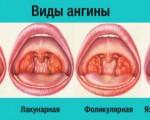 Язвенно-плёнчатая ангина: симптомы и лечение