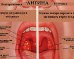 Гортанная ангина — инфекционное заболевание вирусного и бактериального происхождения