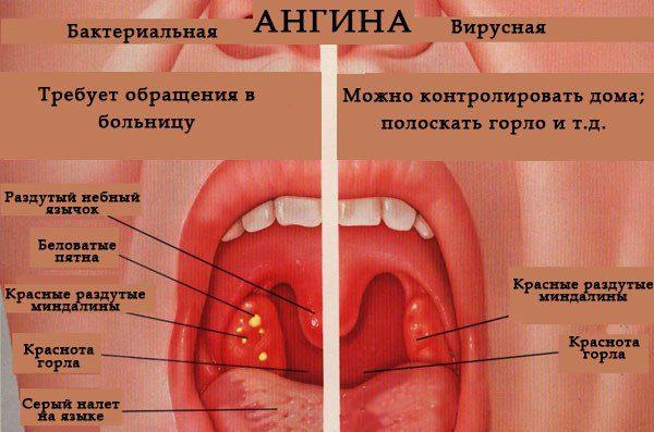 Гортанная ангина: развитие и лечение