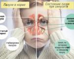 Как диагностировать и лечить гайморит у ребенка 3 лет?