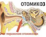 Что такое отомикоз (грибок в ушах) и почему он развивается?
