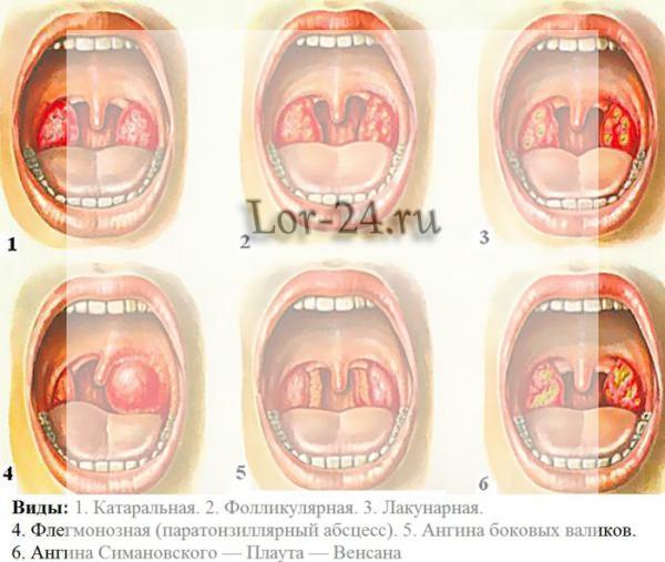 Виды ангин, из которых наиболее опасная ангина Симановского Венсана