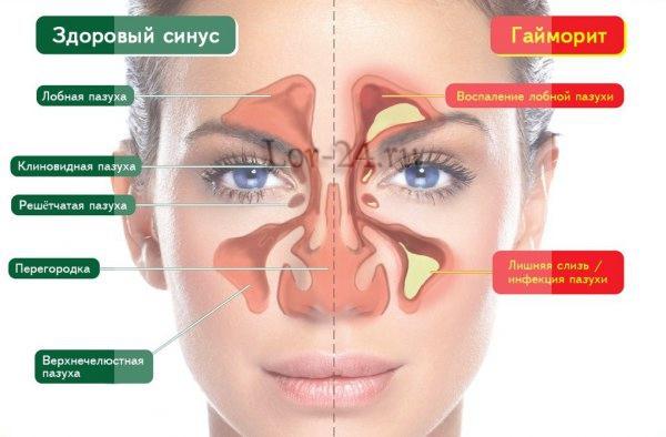 Лечение хронического гайморита