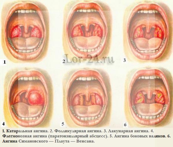 formy anginy