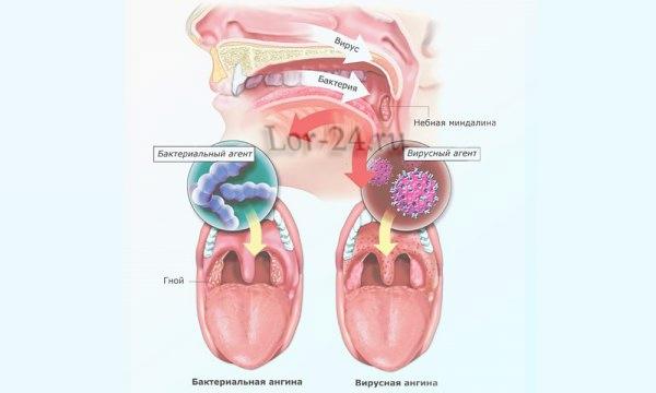 gerpesnaya angina u detey