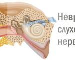 Как и почему появляется неврит слухового нерва