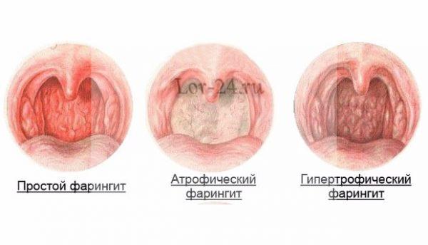 Фарингит - формы заболевания