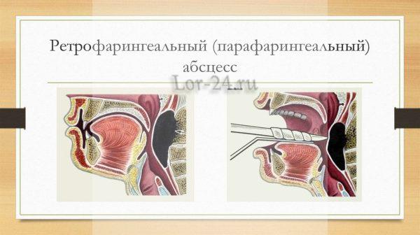 Клиническая картина
