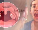 Абсцесс миндалин (гланд) — виды, признаки и симптомы, лечение