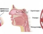 Аденоиды — симптомы и лечение аденоидов у взрослых