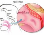Что такое гнойный аденоидит и как он развивается?