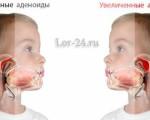 Лечение аденоидов без операции