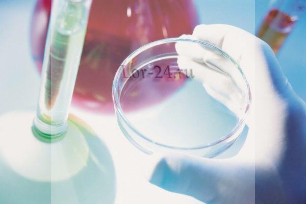 analiz krovi na difteriu