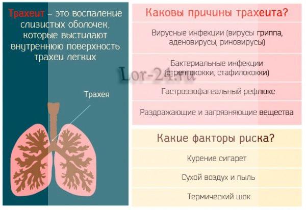 Ostryy trakheit