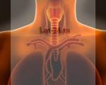 Бактериальный трахеит – симптомы и лечение