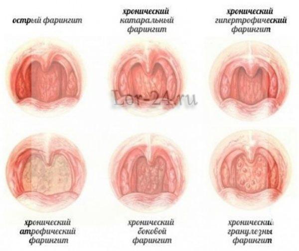 vidy faringita