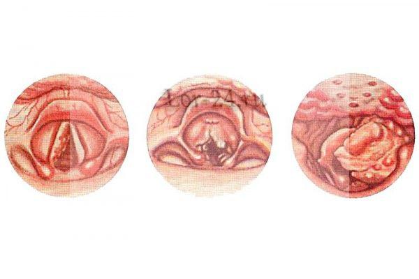 foto nachalnoy stadii raka glotki