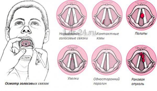 simptomy raka golosovykh svyazok