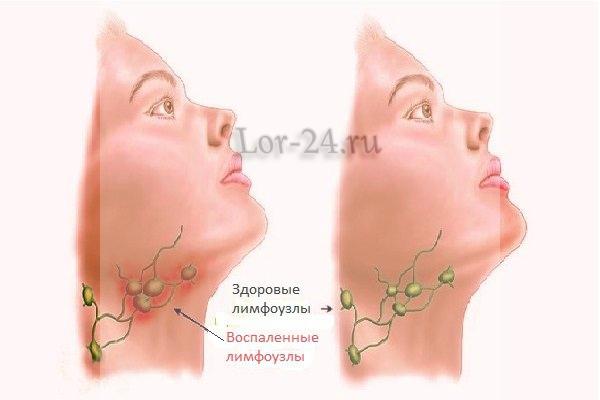uvelicheniye limfouzlov pri rake gortani
