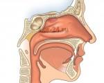 Рак носоглотки, как развивается, какие первые симптомы и признаки, как диагностировать и лечить?